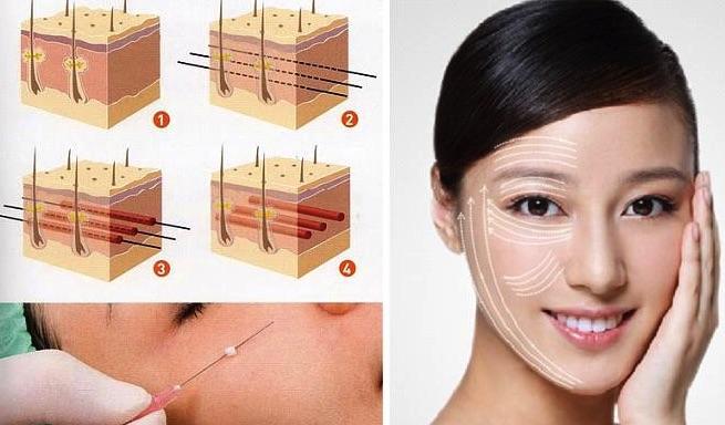 Có nên căng da mặt bằng chỉ collagen không
