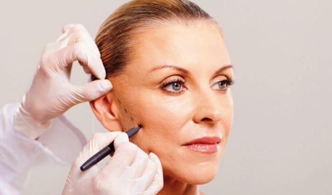 Quy trình căng da mặt bằng collagen